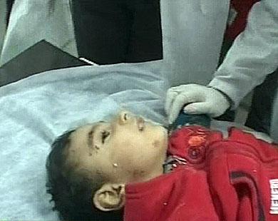 أ�د الض�ايا الأطفال الذين استشهدوا في القصف الإسرائيلي على منزل القيادي في �ماس نزار ريان
