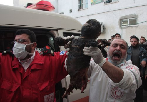 see-what-israel-done-to-a-palestinian-child